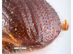 Posterior view female