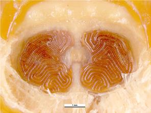 Posterior spiracles